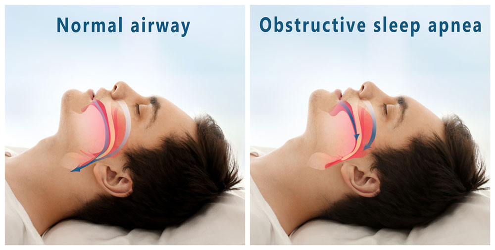types of sleep apnea graph